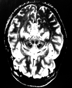 Scan of my brain. Dead centre there are two circular shapes, to the left and right are two semi-circular shaped which look like spanner ends. This is where the DBS electrodes are located.